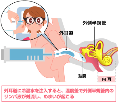http://www.memai-navi.com/sp/medical_specialist/img/illust0602.jpg